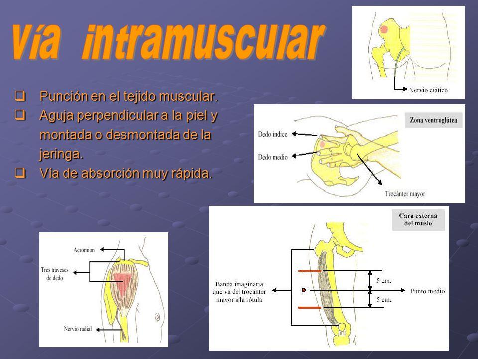 vía intramuscular Punción en el tejido muscular.