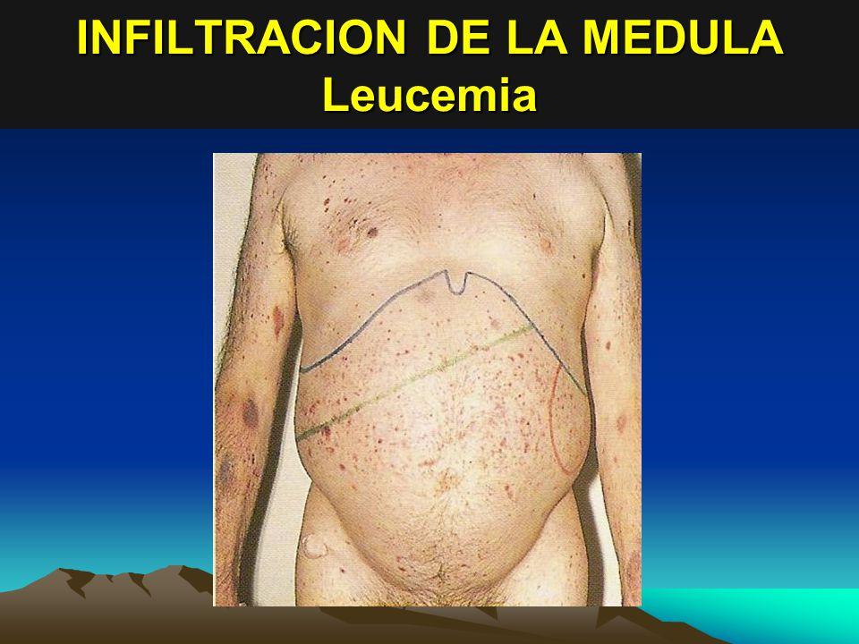 INFILTRACION DE LA MEDULA Leucemia