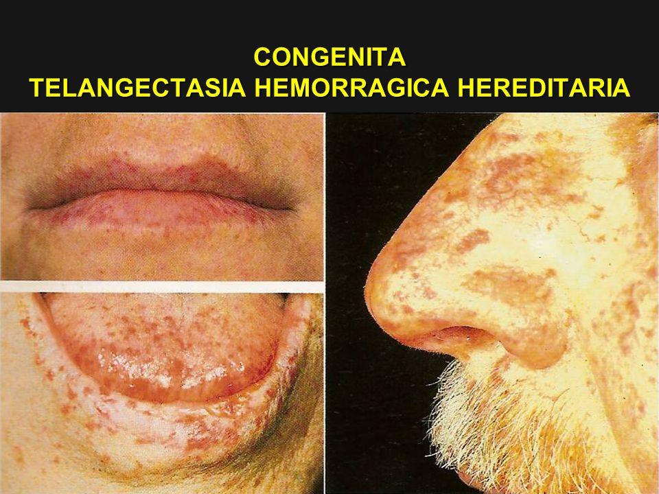 CONGENITA TELANGECTASIA HEMORRAGICA HEREDITARIA