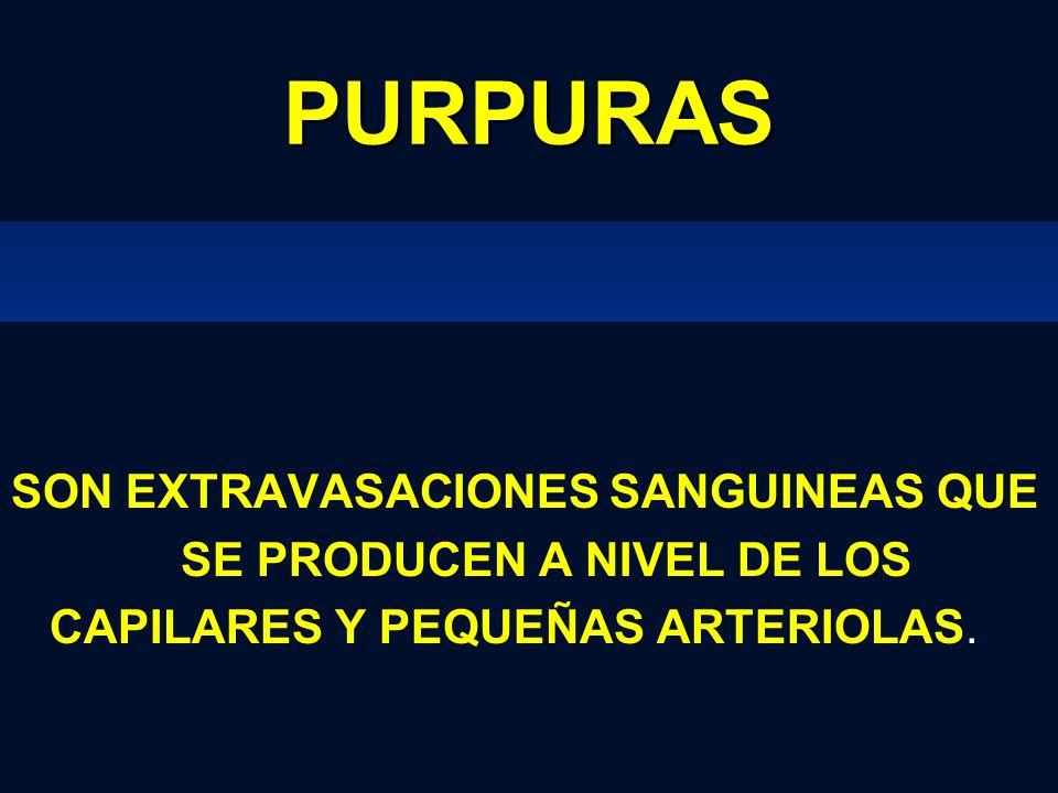 PURPURAS SON EXTRAVASACIONES SANGUINEAS QUE SE PRODUCEN A NIVEL DE LOS