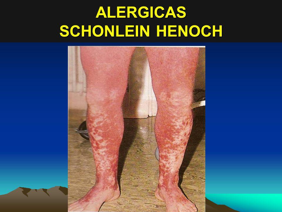 ALERGICAS SCHONLEIN HENOCH