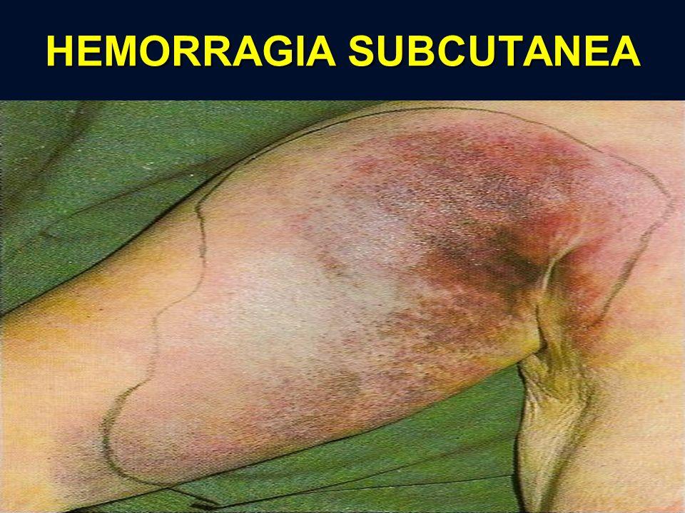 HEMORRAGIA SUBCUTANEA