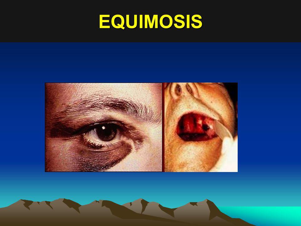 EQUIMOSIS