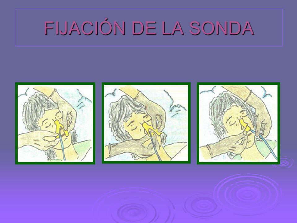 FIJACIÓN DE LA SONDA