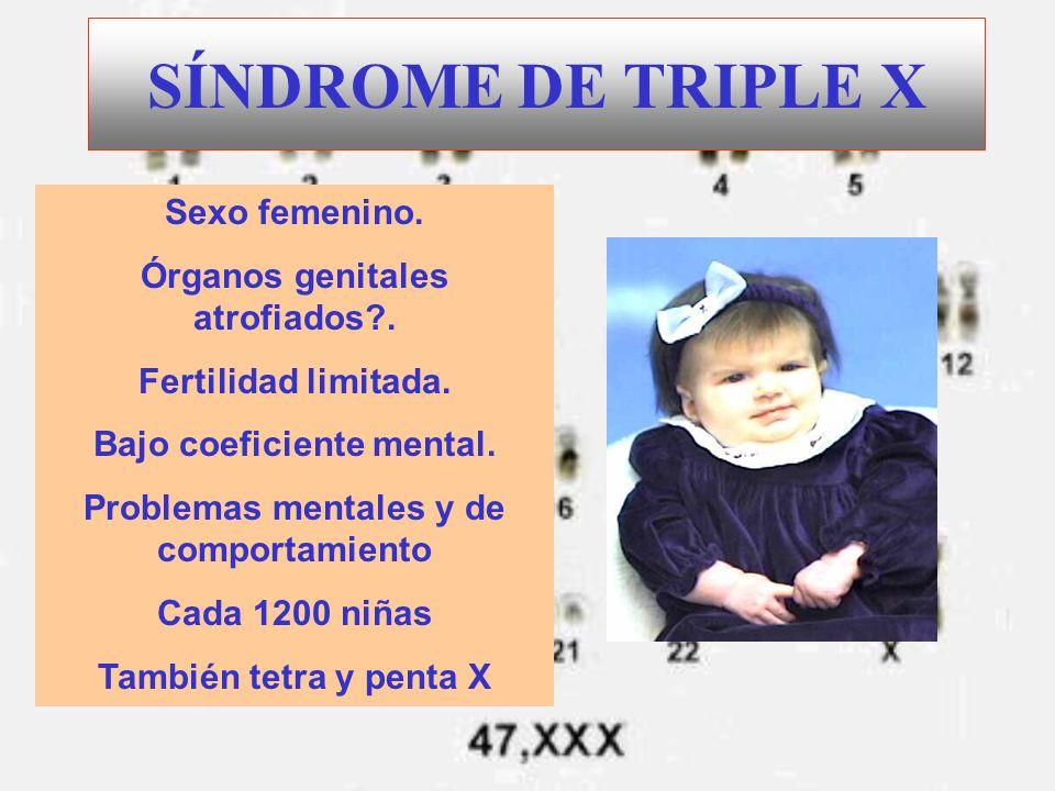 SÍNDROME DE TRIPLE X Sexo femenino. Órganos genitales atrofiados .