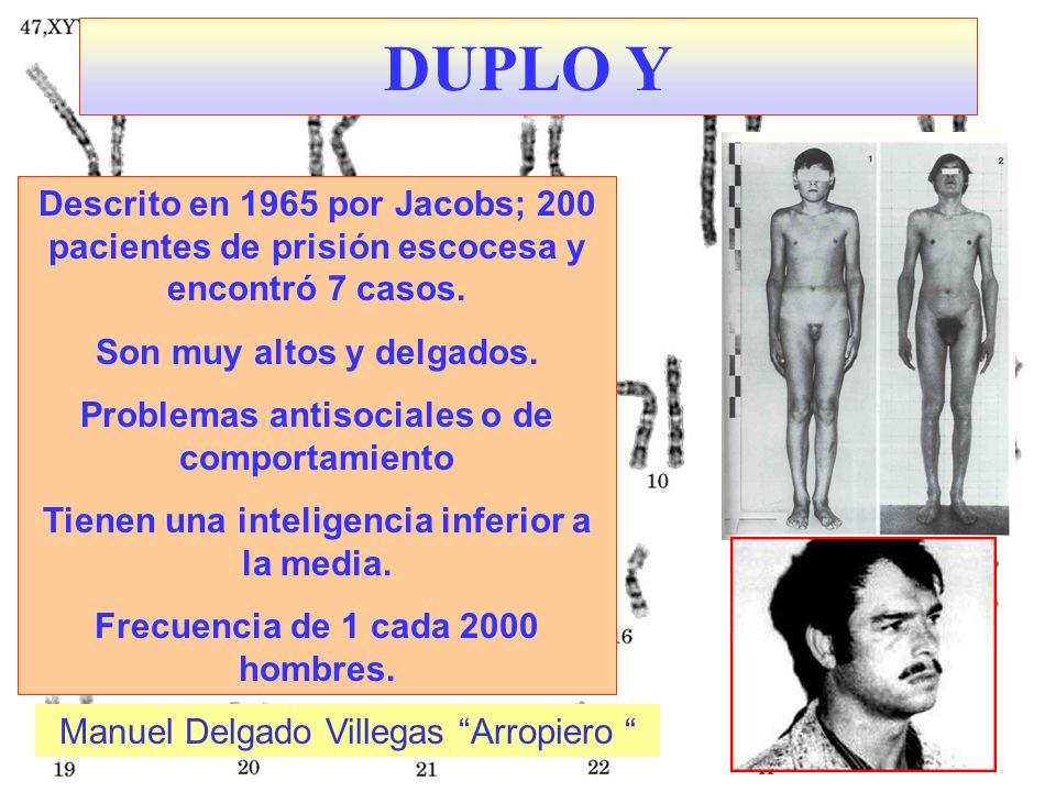 DUPLO YDescrito en 1965 por Jacobs; 200 pacientes de prisión escocesa y encontró 7 casos. Son muy altos y delgados.