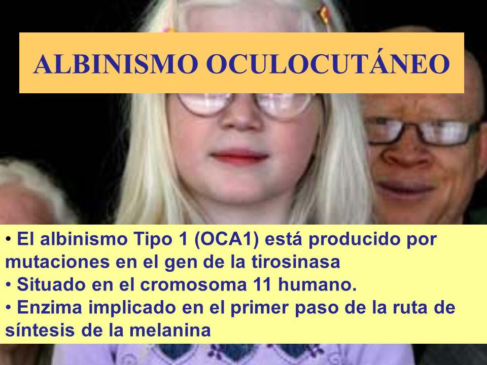 ALBINISMO OCULOCUTÁNEO