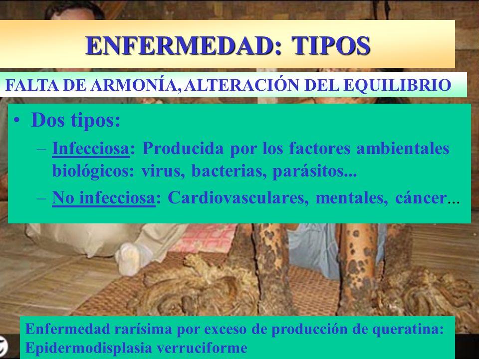 ENFERMEDAD: TIPOS Dos tipos:
