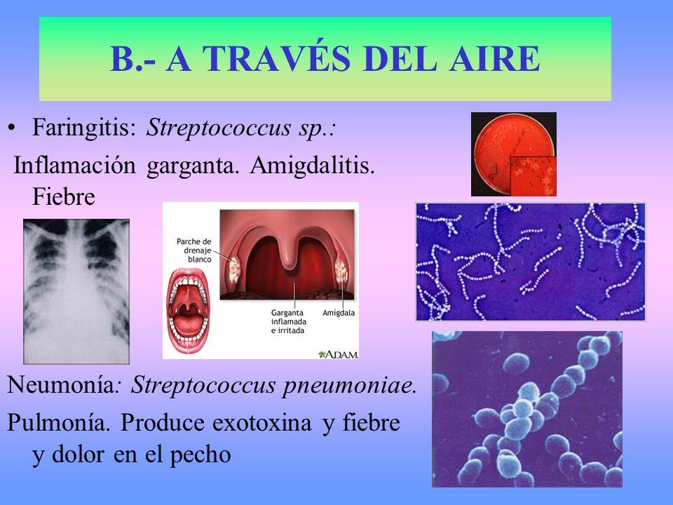 B.- A TRAVÉS DEL AIRE Faringitis: Streptococcus sp.: