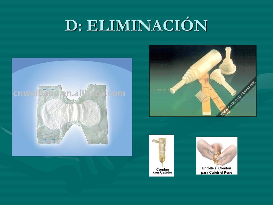 D: ELIMINACIÓN
