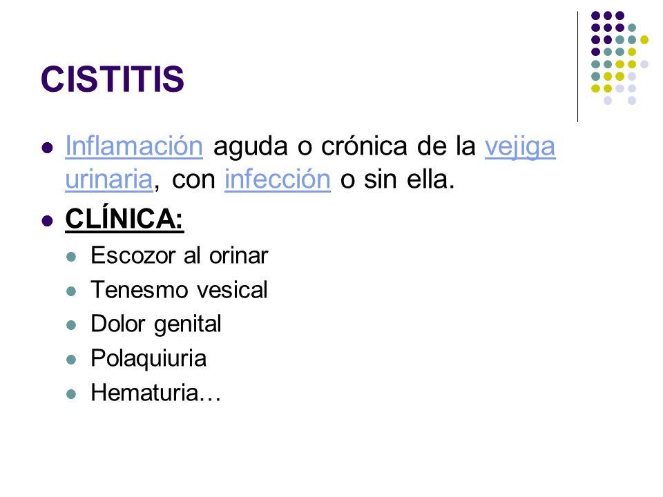 CISTITIS Inflamación aguda o crónica de la vejiga urinaria, con infección o sin ella. CLÍNICA: Escozor al orinar.