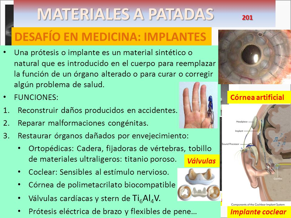 MATERIALES A PATADAS 201 DESAFÍO EN MEDICINA: IMPLANTES