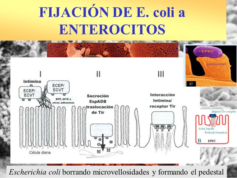 FIJACIÓN DE E. coli a ENTEROCITOS