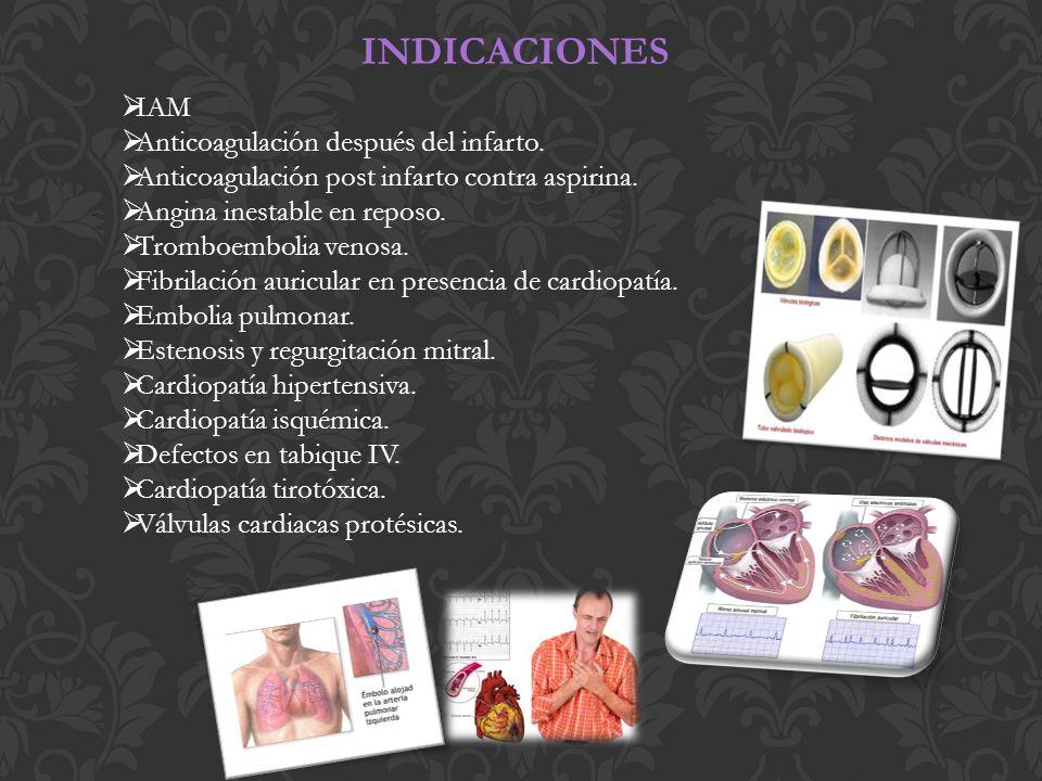 INDICACIONES IAM Anticoagulación después del infarto.