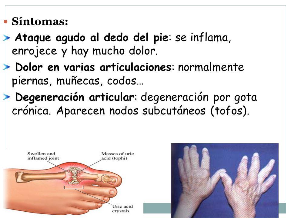 Síntomas: Ataque agudo al dedo del pie: se inflama, enrojece y hay mucho dolor. Dolor en varias articulaciones: normalmente piernas, muñecas, codos…