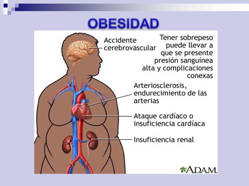 OBESIDAD 5