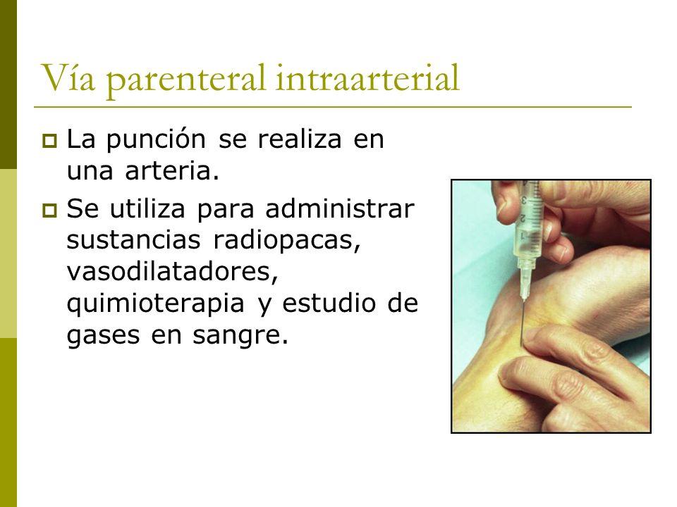 Vía parenteral intraarterial