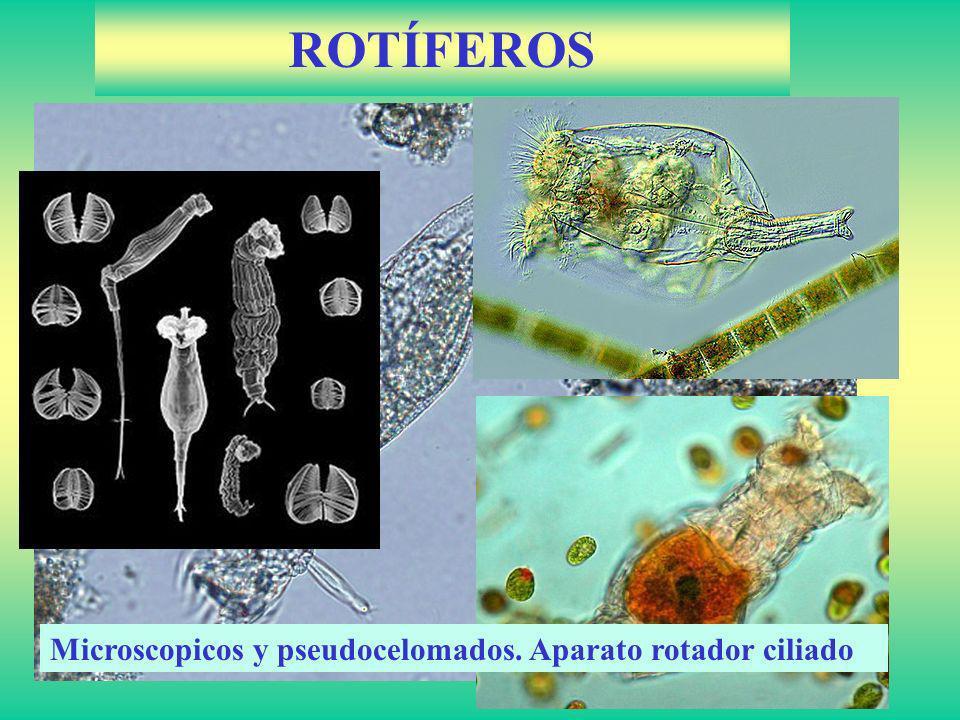 ROTÍFEROS Microscopicos y pseudocelomados.