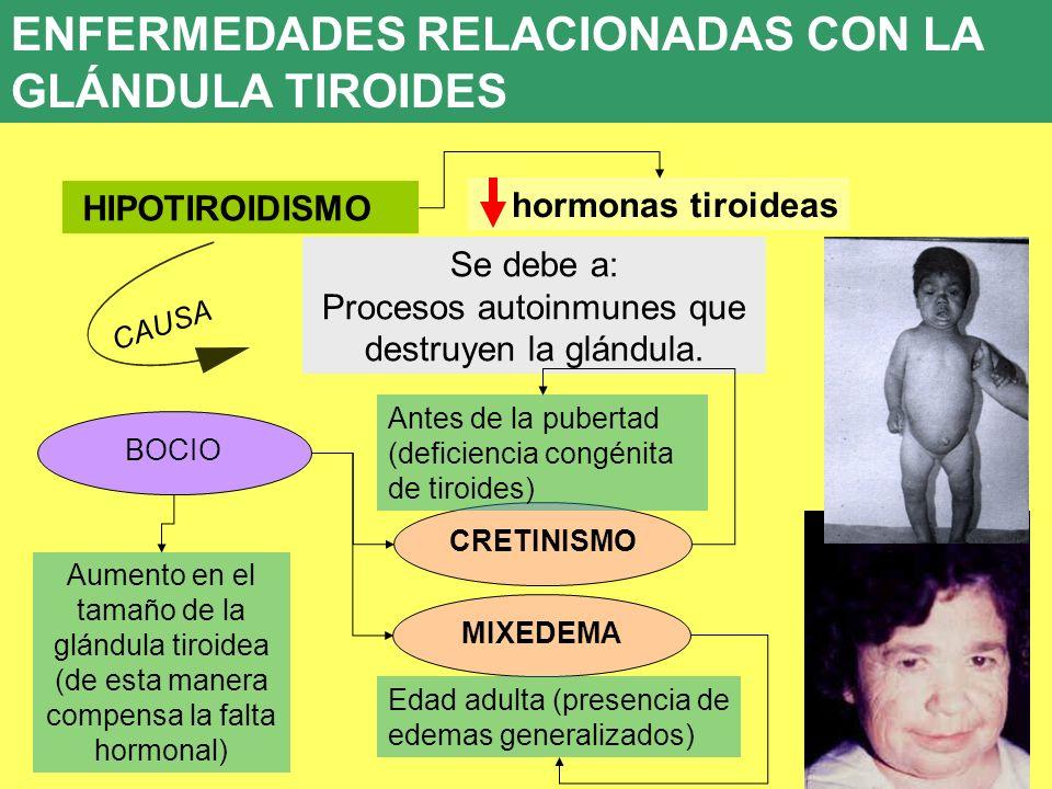 Procesos autoinmunes que destruyen la glándula.