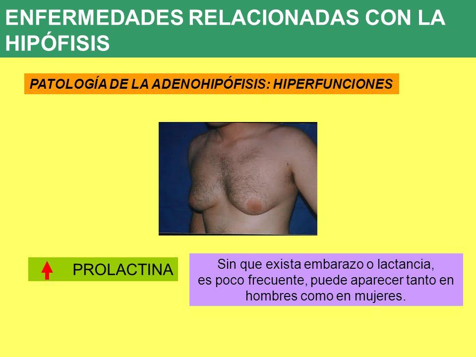 ENFERMEDADES RELACIONADAS CON LA HIPÓFISIS