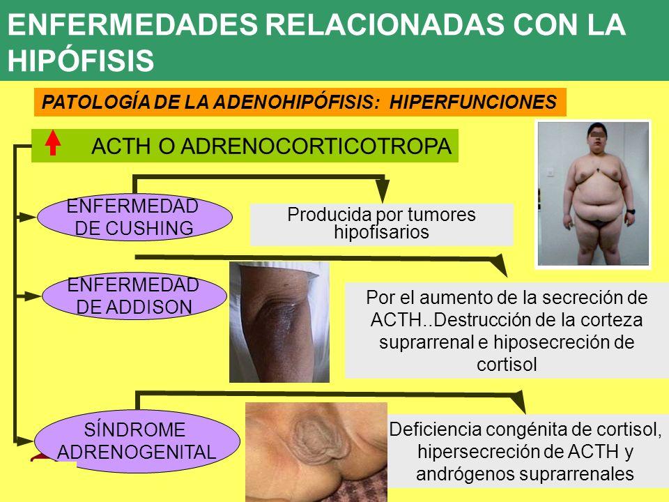 Producida por tumores hipofisarios