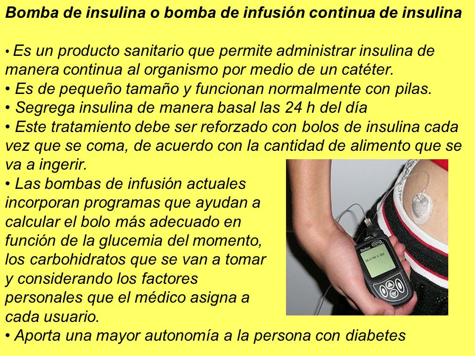 Bomba de insulina o bomba de infusión continua de insulina