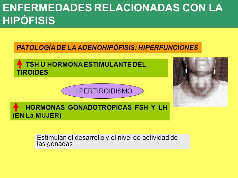ENFERMEDADES RELACIONADAS CON LA HIPÓFISIS 8. ENFERMEDADES ENDOCRINAS