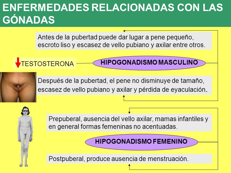 HIPOGONADISMO MASCULINO HIPOGONADISMO FEMENINO