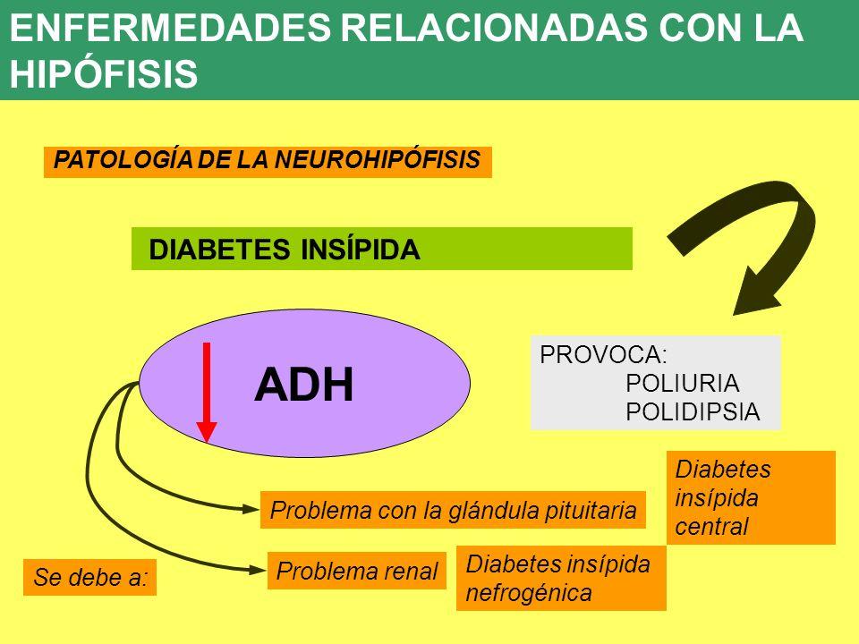 ADH ENFERMEDADES RELACIONADAS CON LA HIPÓFISIS