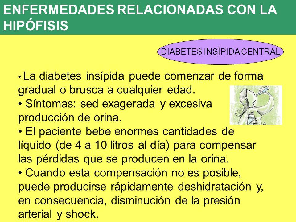 DIABETES INSÍPIDA CENTRAL