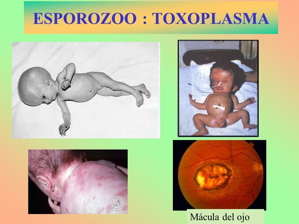 ESPOROZOO : TOXOPLASMA