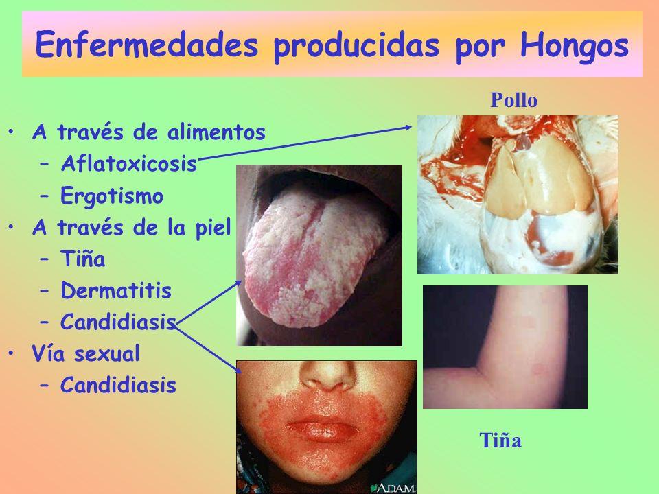Enfermedades producidas por Hongos