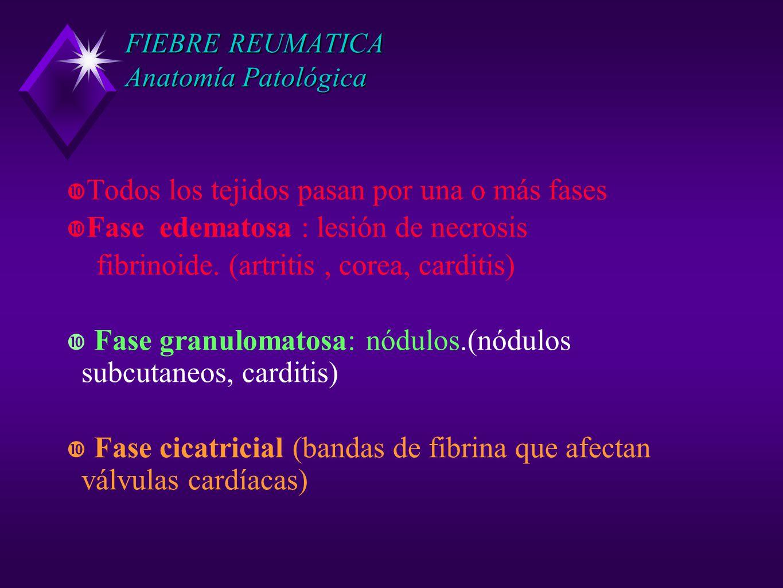 FIEBRE REUMATICA Anatomía Patológica