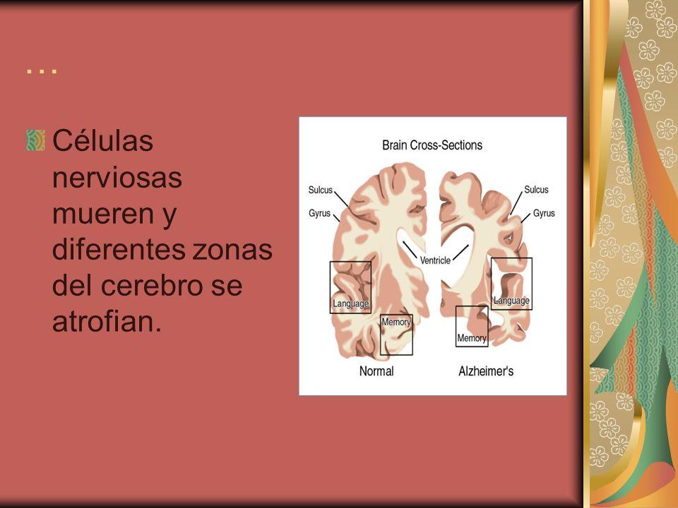 … Células nerviosas mueren y diferentes zonas del cerebro se atrofian.