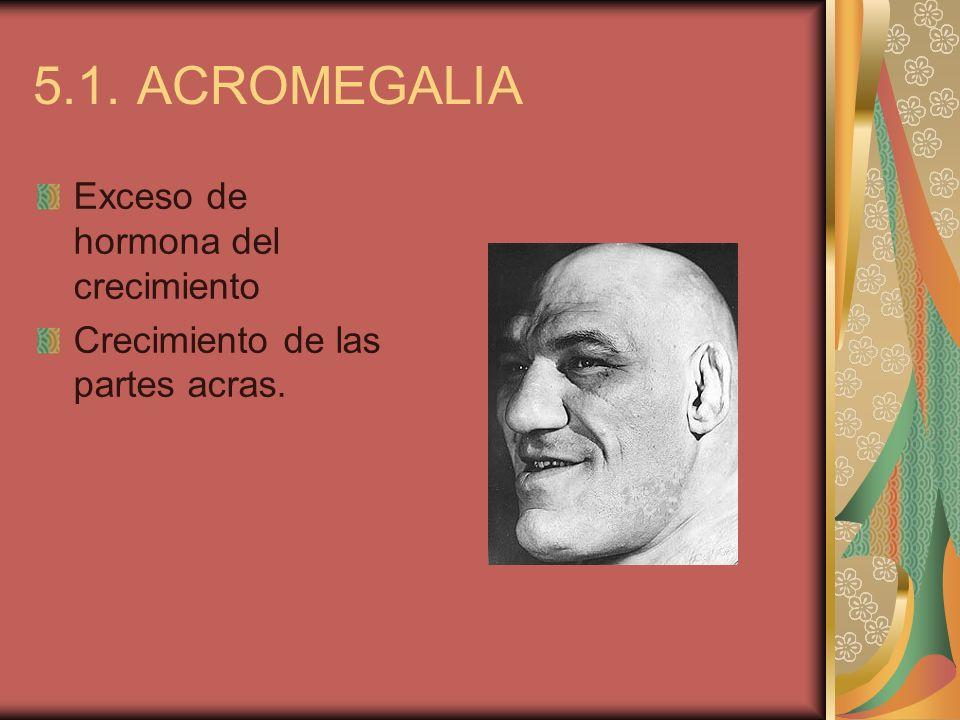 5.1. ACROMEGALIA Exceso de hormona del crecimiento