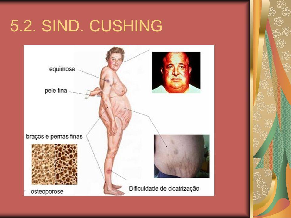 5.2. SIND. CUSHING
