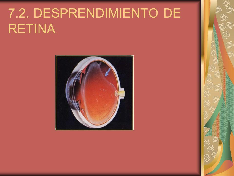 7.2. DESPRENDIMIENTO DE RETINA