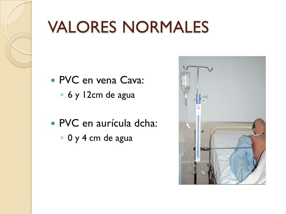 VALORES NORMALES PVC en vena Cava: PVC en aurícula dcha: