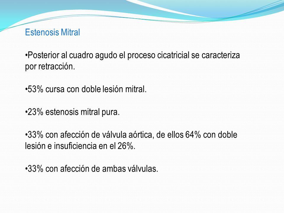 Estenosis Mitral •Posterior al cuadro agudo el proceso cicatricial se caracteriza por retracción. •53% cursa con doble lesión mitral.