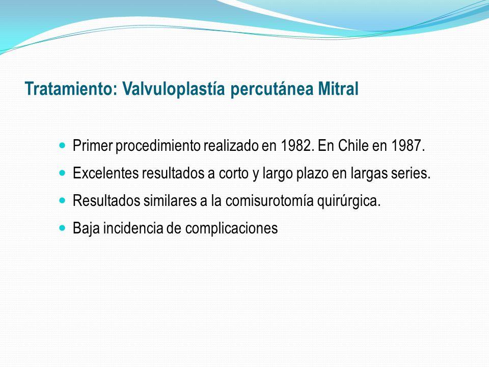 Tratamiento: Valvuloplastía percutánea Mitral