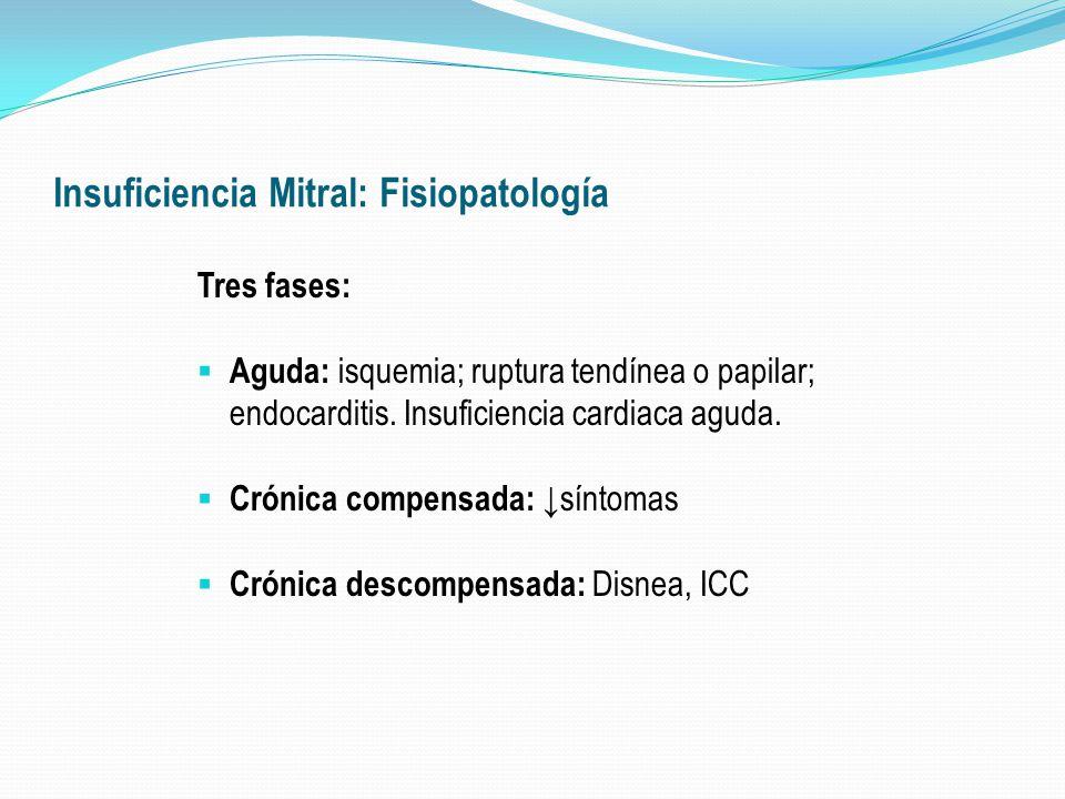 Insuficiencia Mitral: Fisiopatología