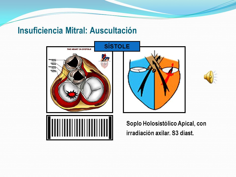 Insuficiencia Mitral: Auscultación