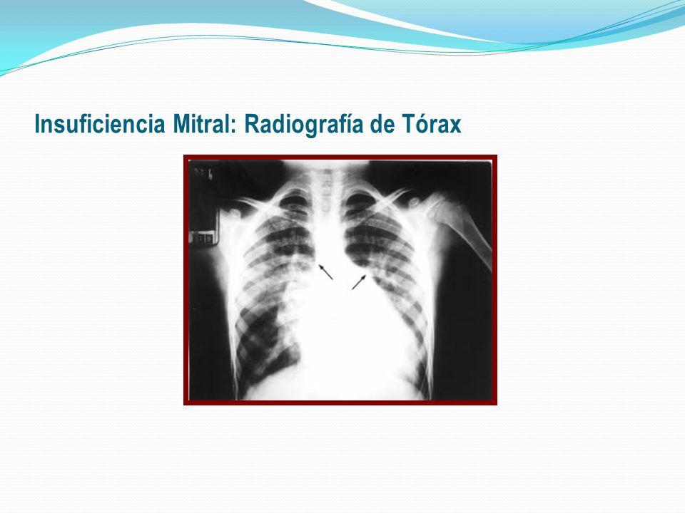 Insuficiencia Mitral: Radiografía de Tórax