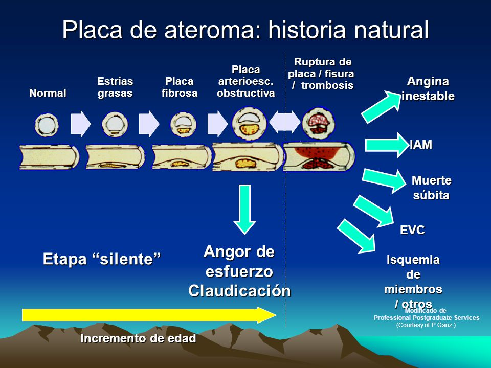 Placa de ateroma: historia natural