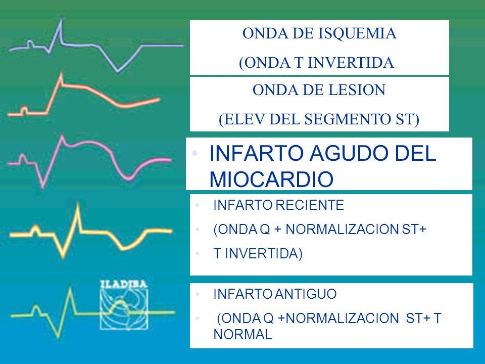 INFARTO AGUDO DEL MIOCARDIO (ONDA Q + ELEVACION ST+ T INVERTIDA)