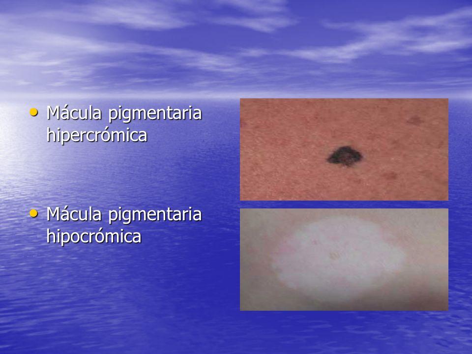 Mácula pigmentaria hipercrómica
