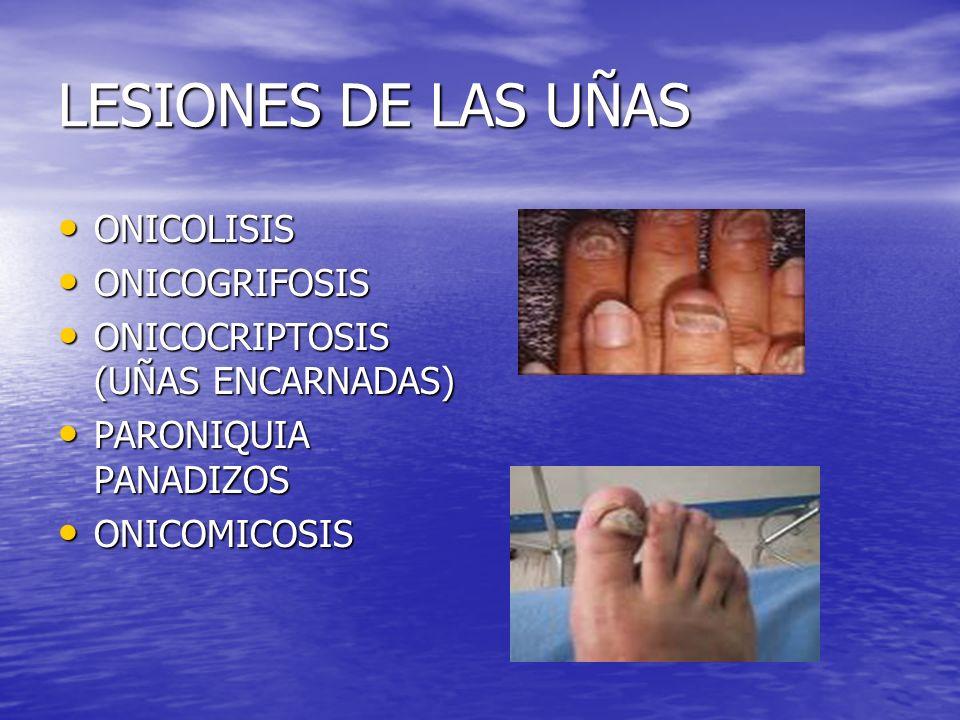 LESIONES DE LAS UÑAS ONICOLISIS ONICOGRIFOSIS
