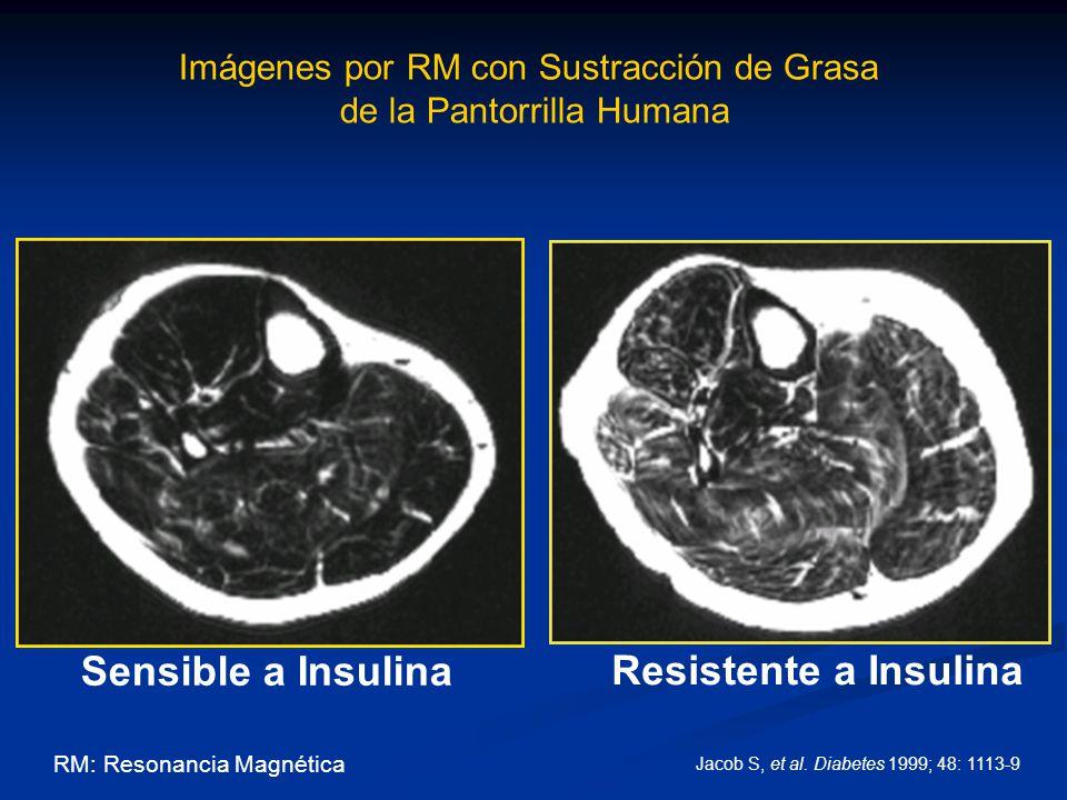 Sensible a Insulina Resistente a Insulina