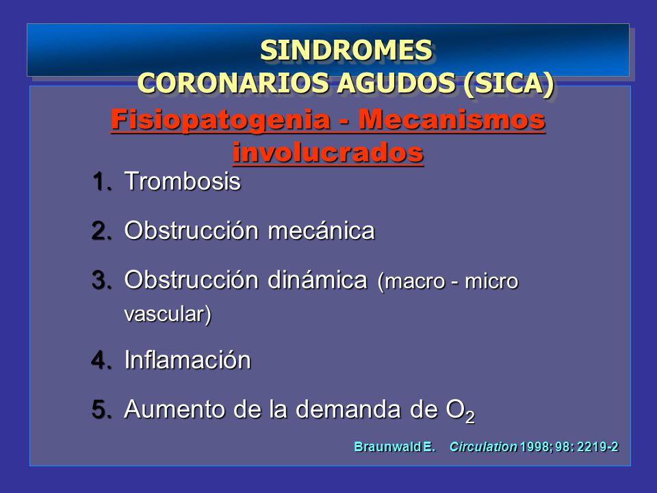 CORONARIOS AGUDOS (SICA)