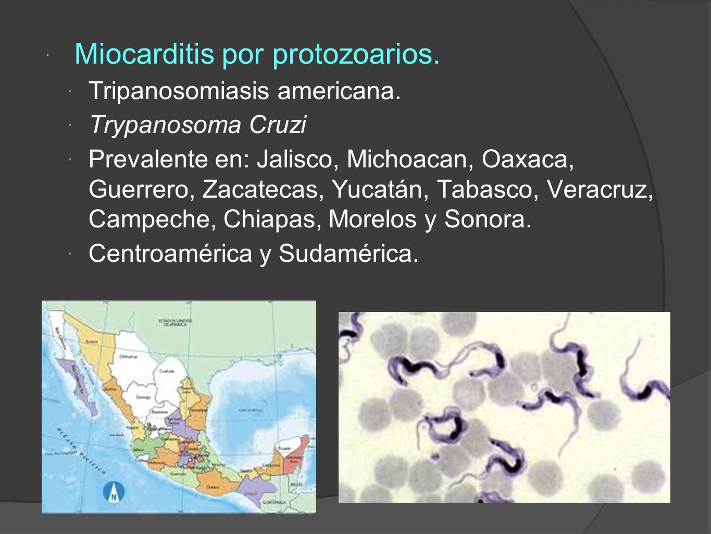 Miocarditis por protozoarios.